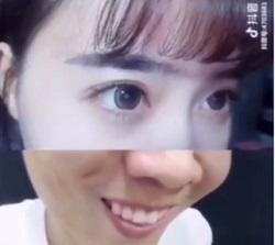 چالش صورت